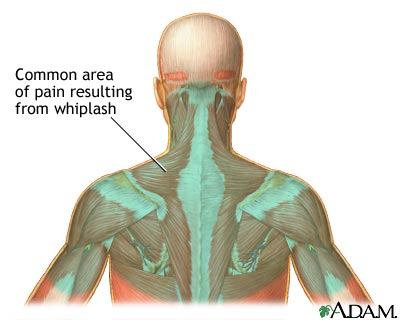 whiplash muscles